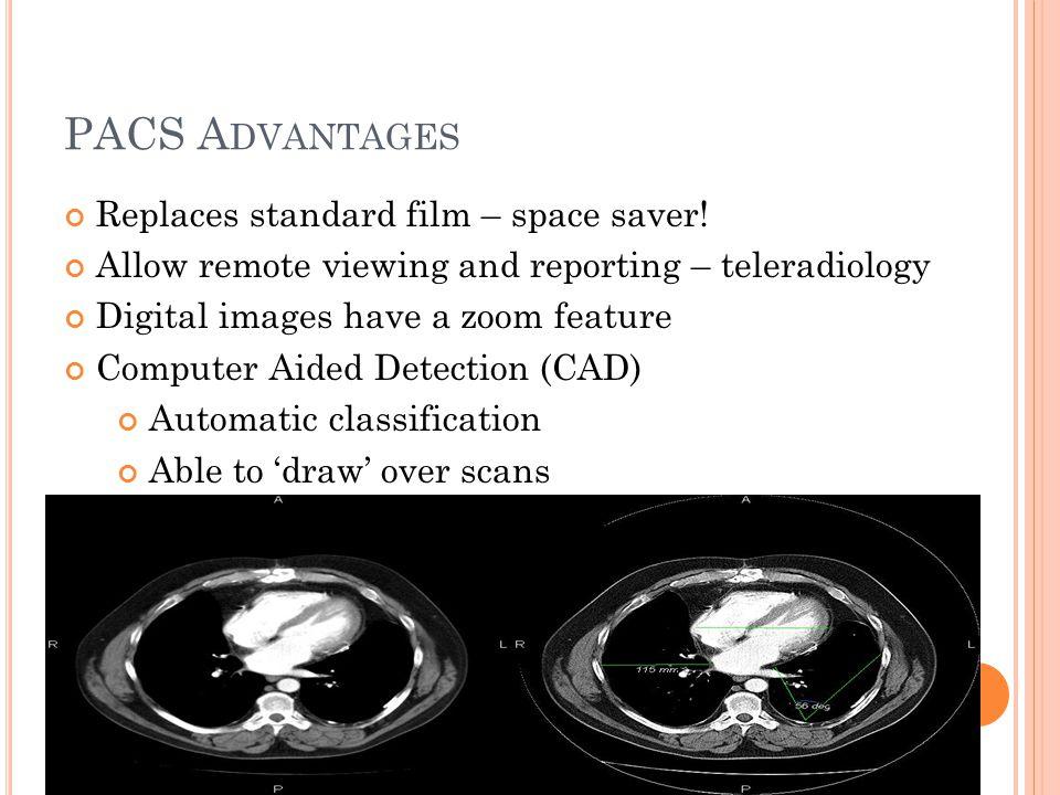 PACS A DVANTAGES Replaces standard film – space saver.