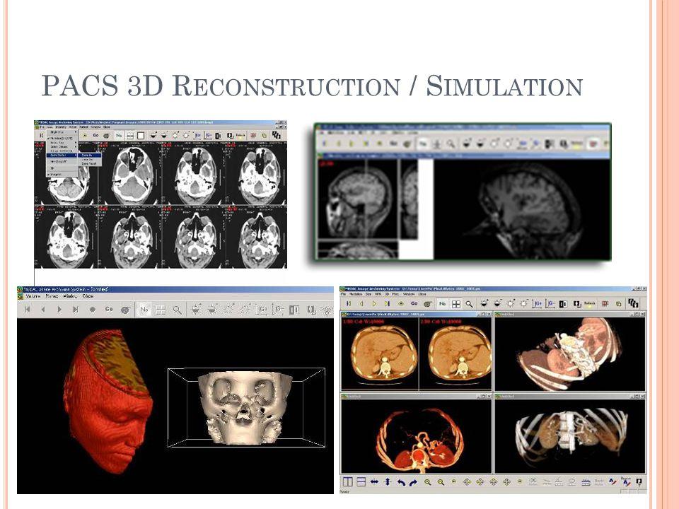 PACS 3D R ECONSTRUCTION / S IMULATION