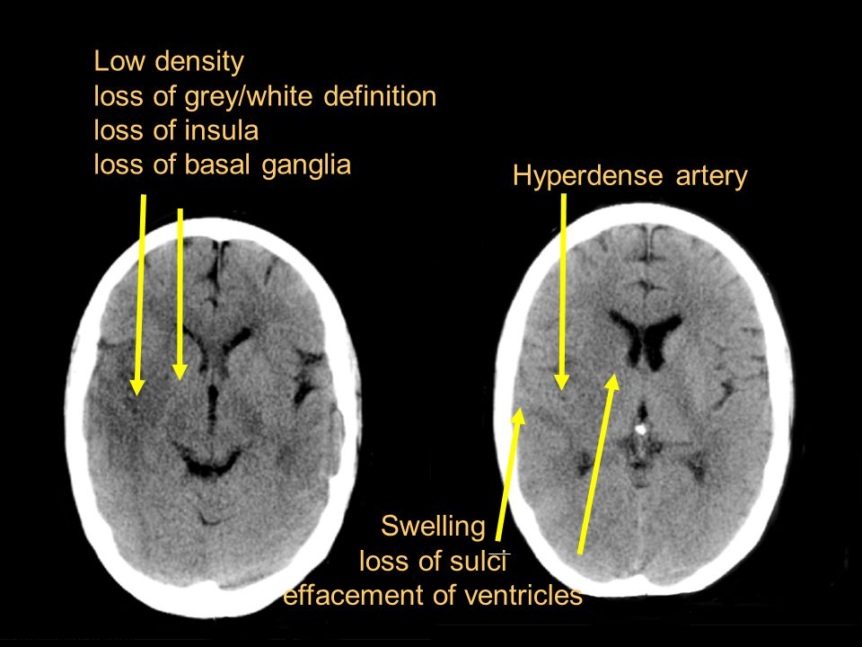 Low density loss of grey/white definition loss of insula loss of basal ganglia Swelling loss of sulci effacement of ventricles Hyperdense artery Farrall, Kane, Wardlaw