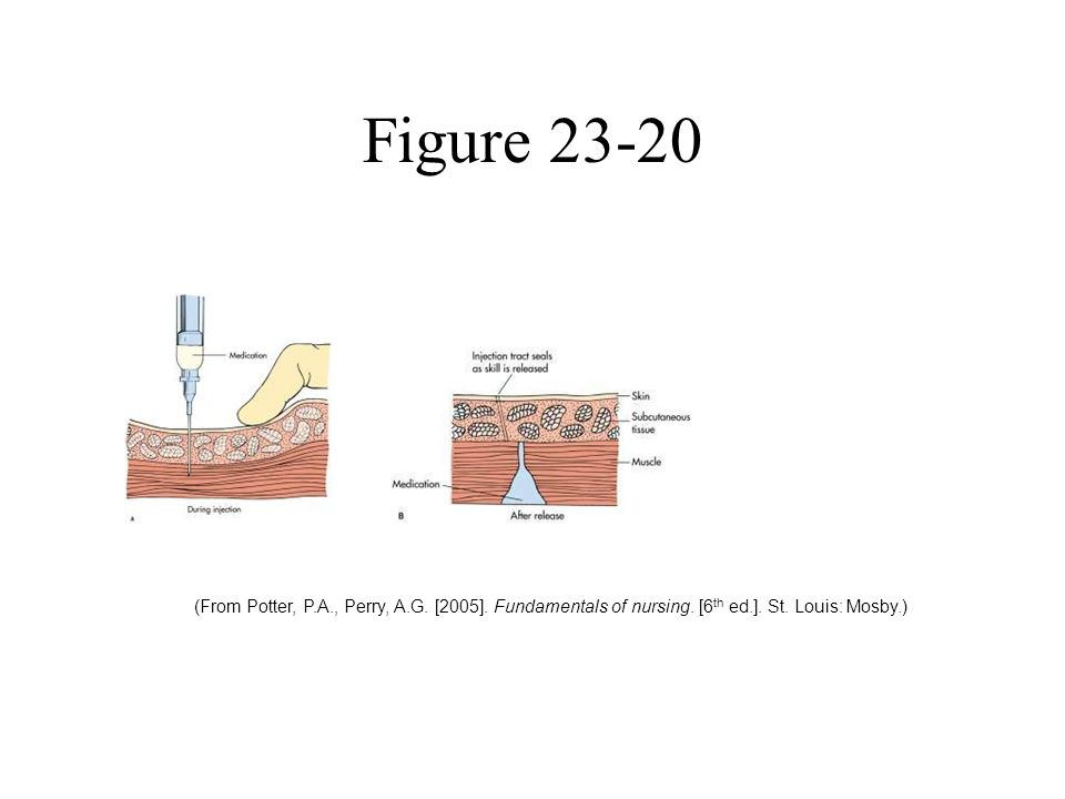 Figure 23-20 (From Potter, P.A., Perry, A.G. [2005].