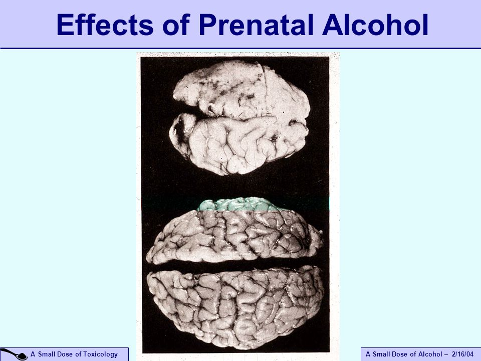 A Small Dose of ToxicologyA Small Dose of Alcohol – 2/16/04 Effects of Prenatal Alcohol