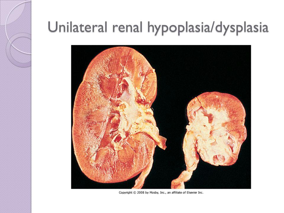 Unilateral renal hypoplasia/dysplasia