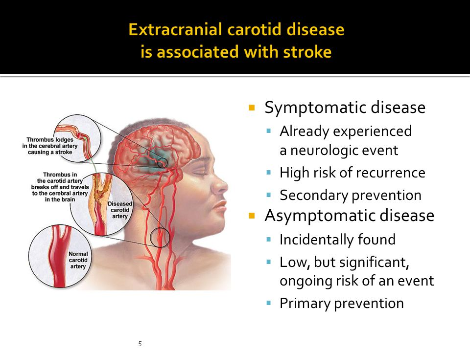  Symptomatic disease  Already experienced a neurologic event  High risk of recurrence  Secondary prevention  Asymptomatic disease  Incidentally found  Low, but significant, ongoing risk of an event  Primary prevention 5