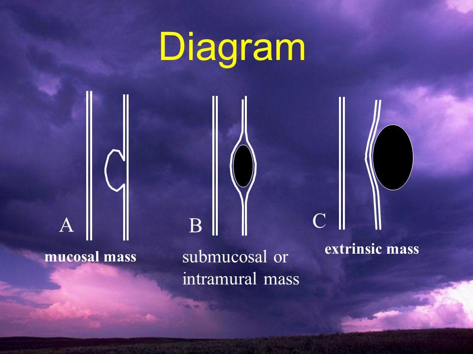 mucosal mass A submucosal or intramural mass B extrinsic mass C Diagram