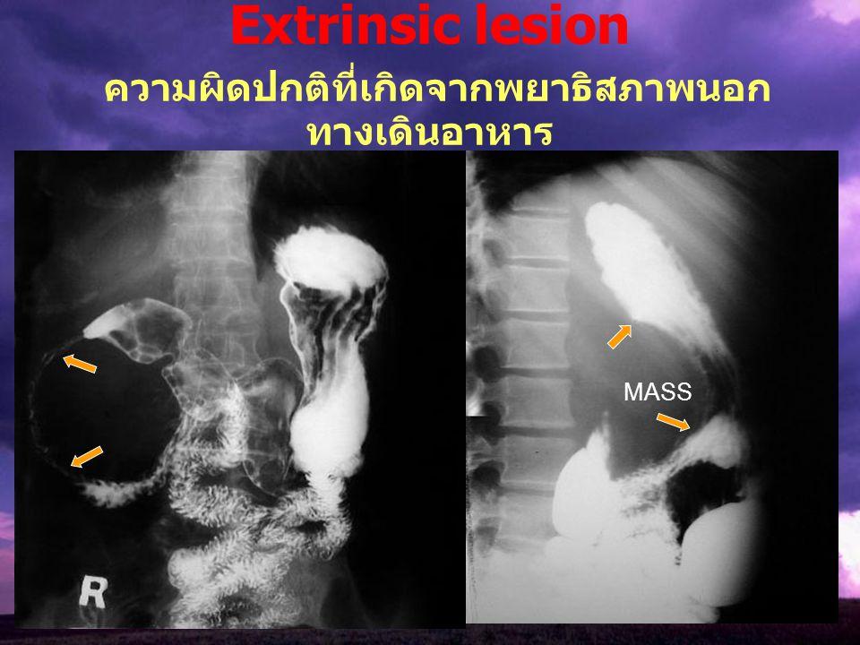 Extrinsic lesion ความผิดปกติที่เกิดจากพยาธิสภาพนอก ทางเดินอาหาร MASS