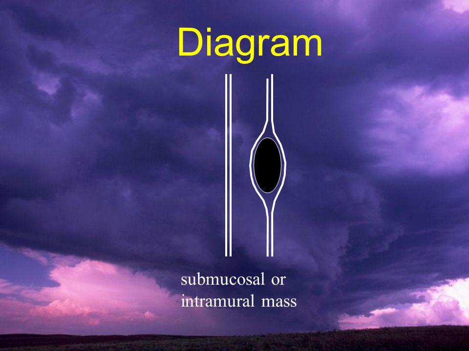 submucosal or intramural mass Diagram