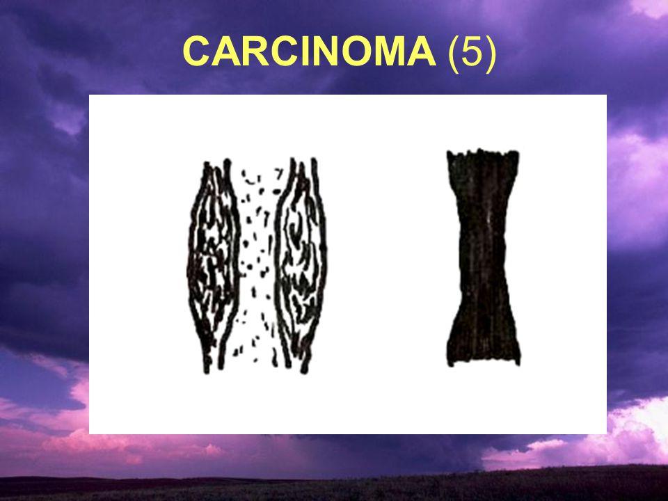 CARCINOMA (5)