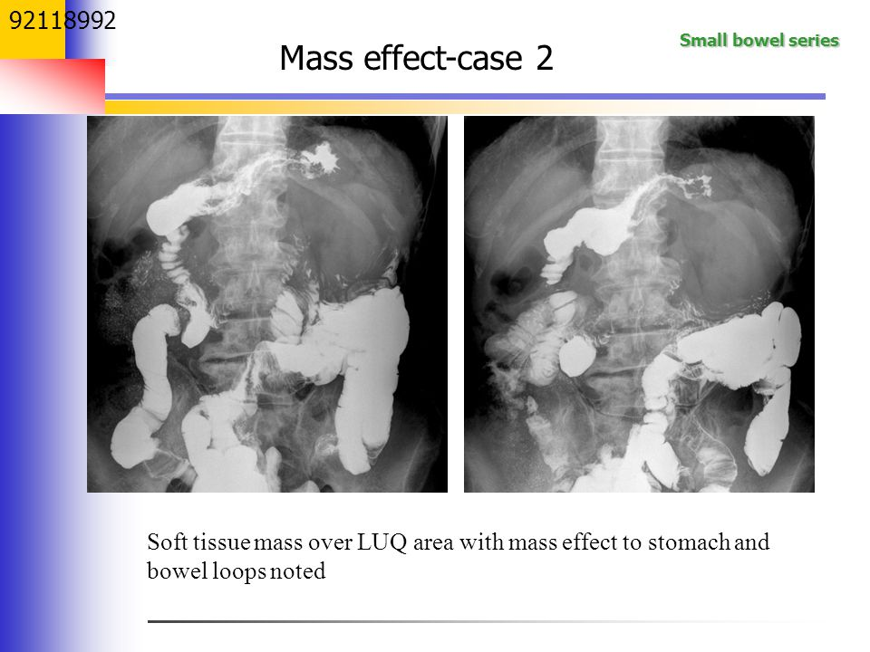 Small bowel series 92118992 Soft tissue mass over LUQ area with mass effect to stomach and bowel loops noted Mass effect-case 2