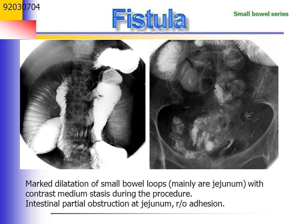 Small bowel series 92030704 Marked dilatation of small bowel loops (mainly are jejunum) with contrast medium stasis during the procedure. Intestinal p