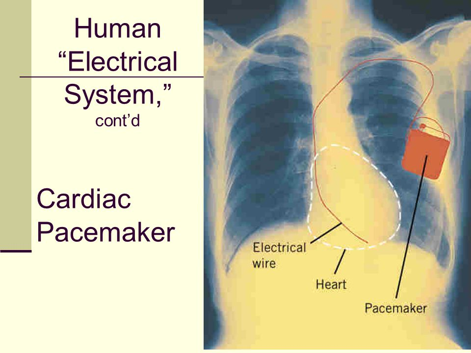 """51 Cardiac Pacemaker Human """"Electrical System,"""" cont'd"""