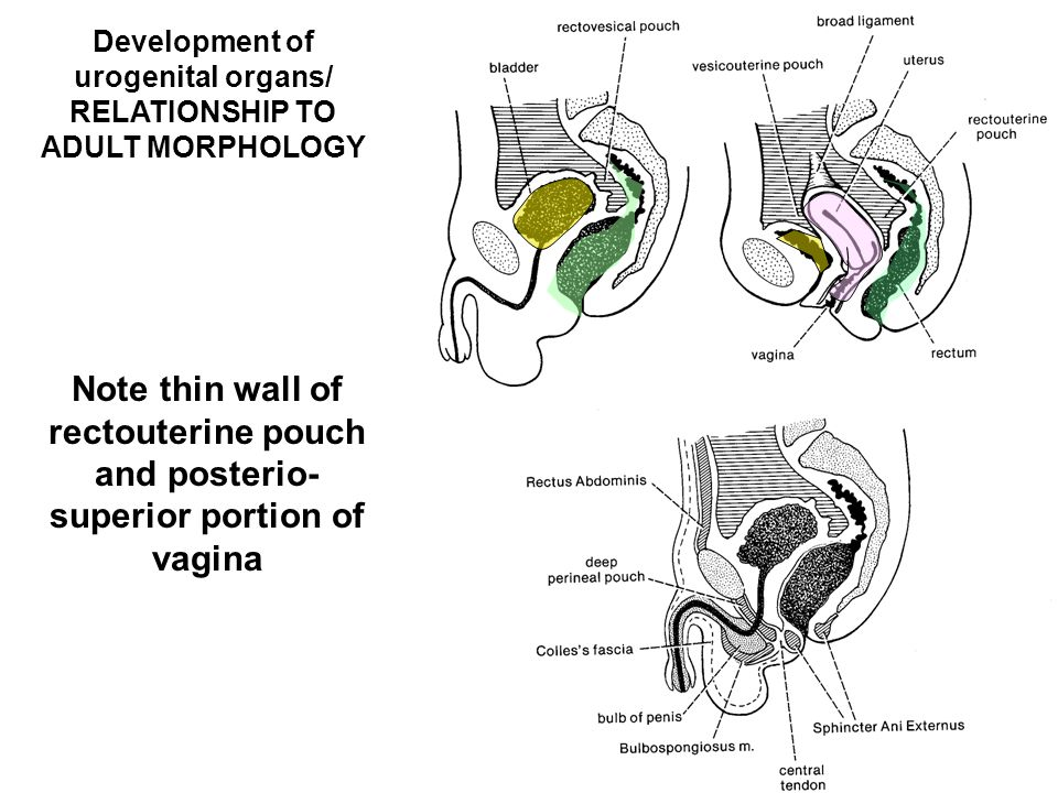 Development of urogenital organs/ RELATIONSHIP TO ADULT MORPHOLOGY Note thin wall of rectouterine pouch and posterio- superior portion of vagina