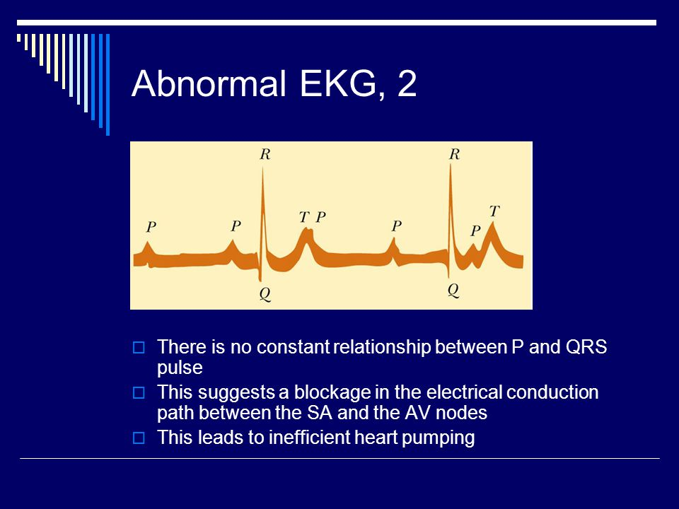 Abnormal EKG, 2  There is no constant relationship between P and QRS pulse  This suggests a blockage in the electrical conduction path between the S