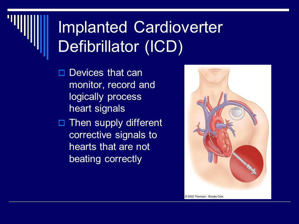 Implanted Cardioverter Defibrillator (ICD)  Devices that can monitor, record and logically process heart signals  Then supply different corrective s