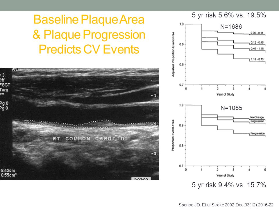 Baseline Plaque Area & Plaque Progression Predicts CV Events Spence JD.