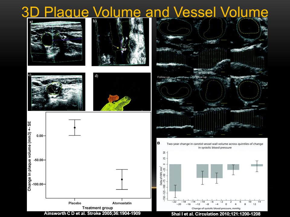 3D Plaque Volume and Vessel Volume Shai I et al.