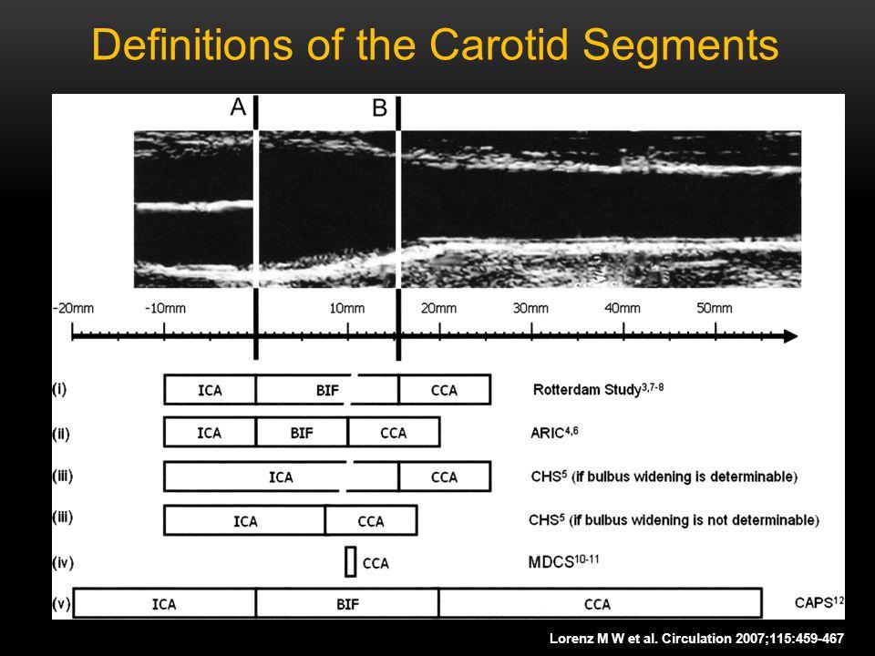 Definitions of the Carotid Segments Lorenz M W et al. Circulation 2007;115:459-467