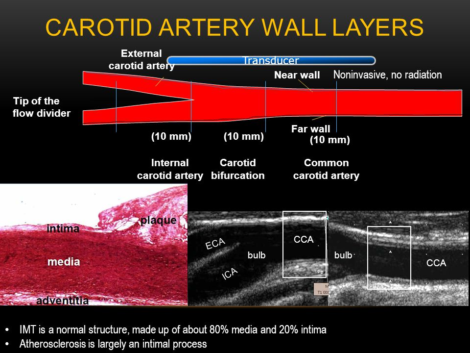 CAROTID ARTERY WALL LAYERS IMT is a normal structure, made up of about 80% media and 20% intima Atherosclerosis is largely an intimal process Noninvasive, no radiation Internal carotid artery Carotid bifurcation Common carotid artery Transducer External carotid artery Tip of the flow divider Far wall Near wall (10 mm) CCA ICA ECA CCA bulb