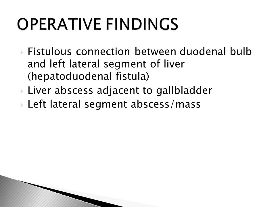  Fistulous connection between duodenal bulb and left lateral segment of liver (hepatoduodenal fistula)  Liver abscess adjacent to gallbladder  Left lateral segment abscess/mass