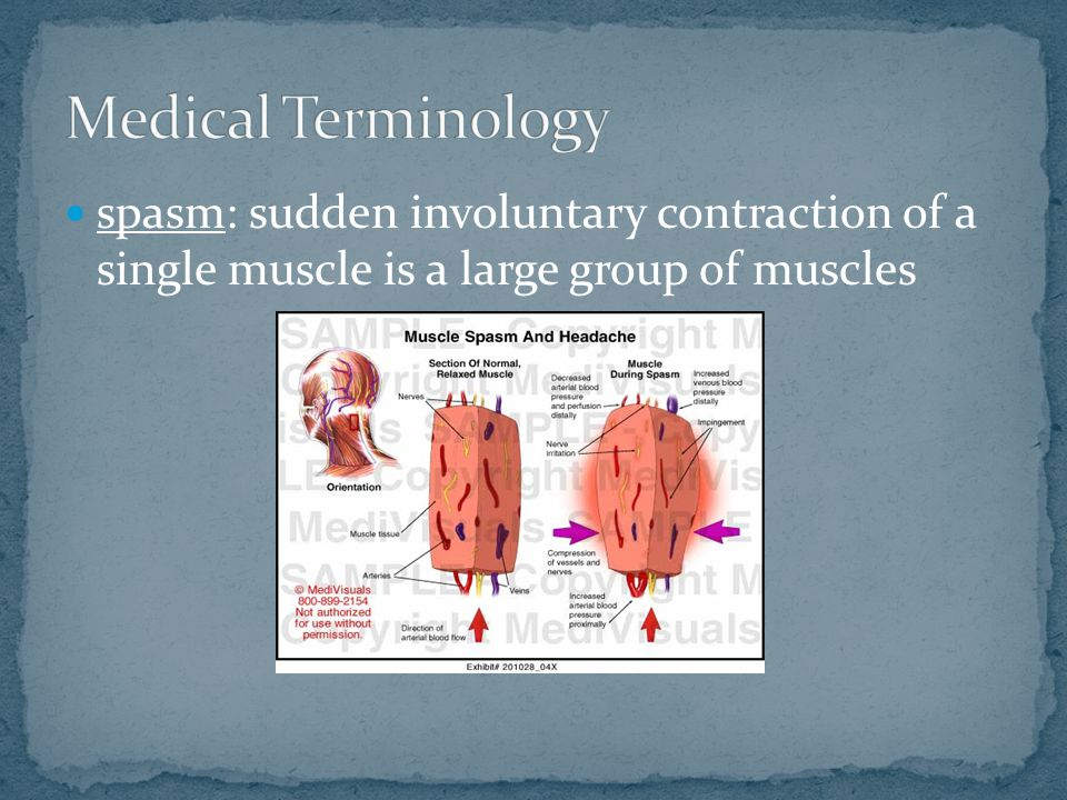 spasm: sudden involuntary contraction of a single muscle is a large group of muscles