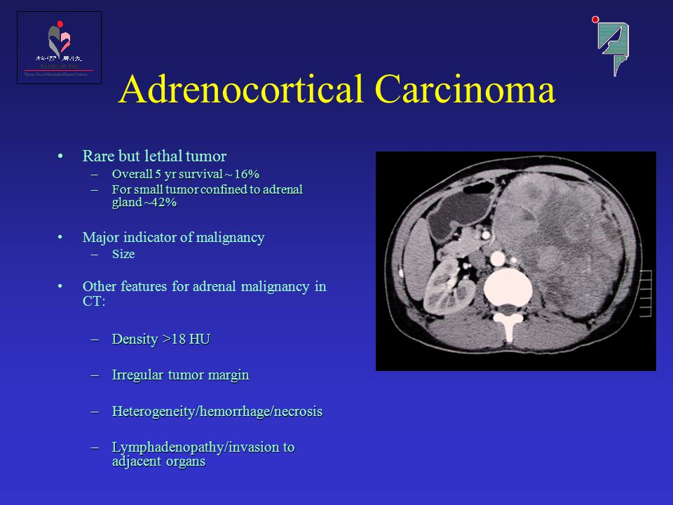 Adrenocortical Carcinoma Rare but lethal tumor –Overall 5 yr survival ~ 16% –For small tumor confined to adrenal gland ~42% Major indicator of maligna
