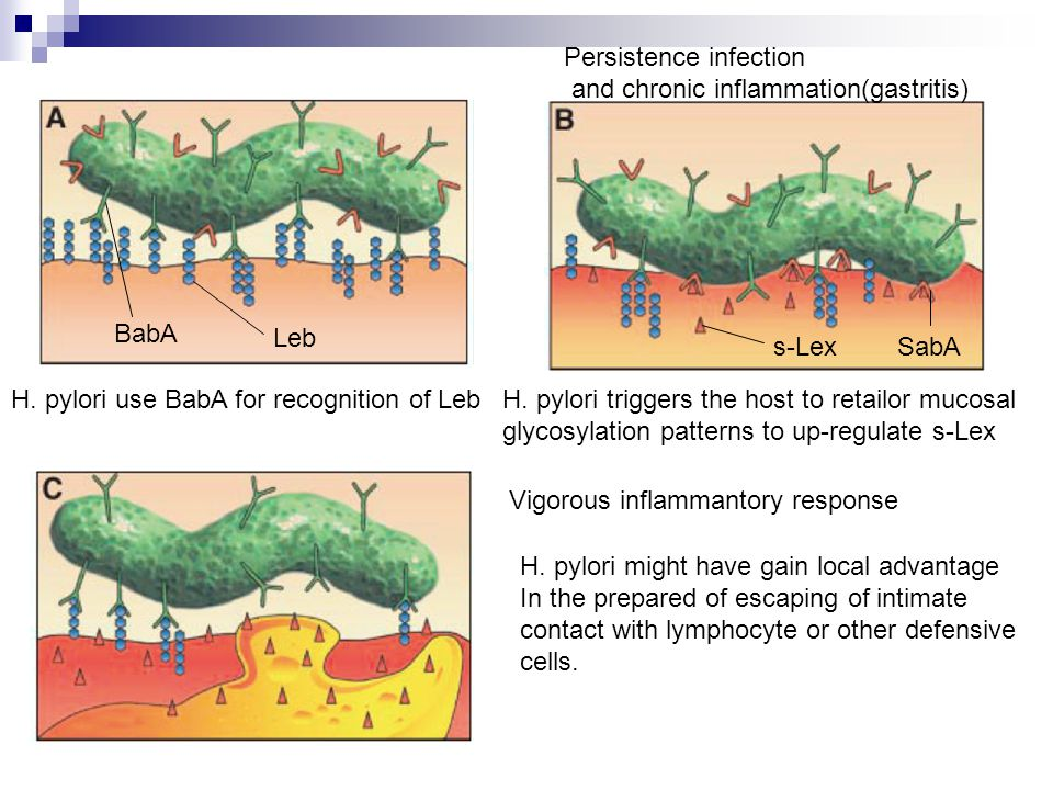 Leb BabA Persistence infection and chronic inflammation(gastritis) H.