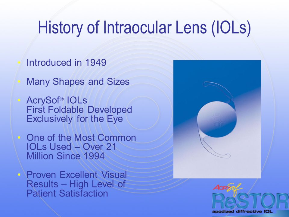 History of Intraocular Lens (IOLs) Introduced in 1949 Many Shapes and Sizes AcrySof ® IOLs First Foldable Developed Exclusively for the Eye One of the Most Common IOLs Used – Over 21 Million Since 1994 Proven Excellent Visual Results – High Level of Patient Satisfaction