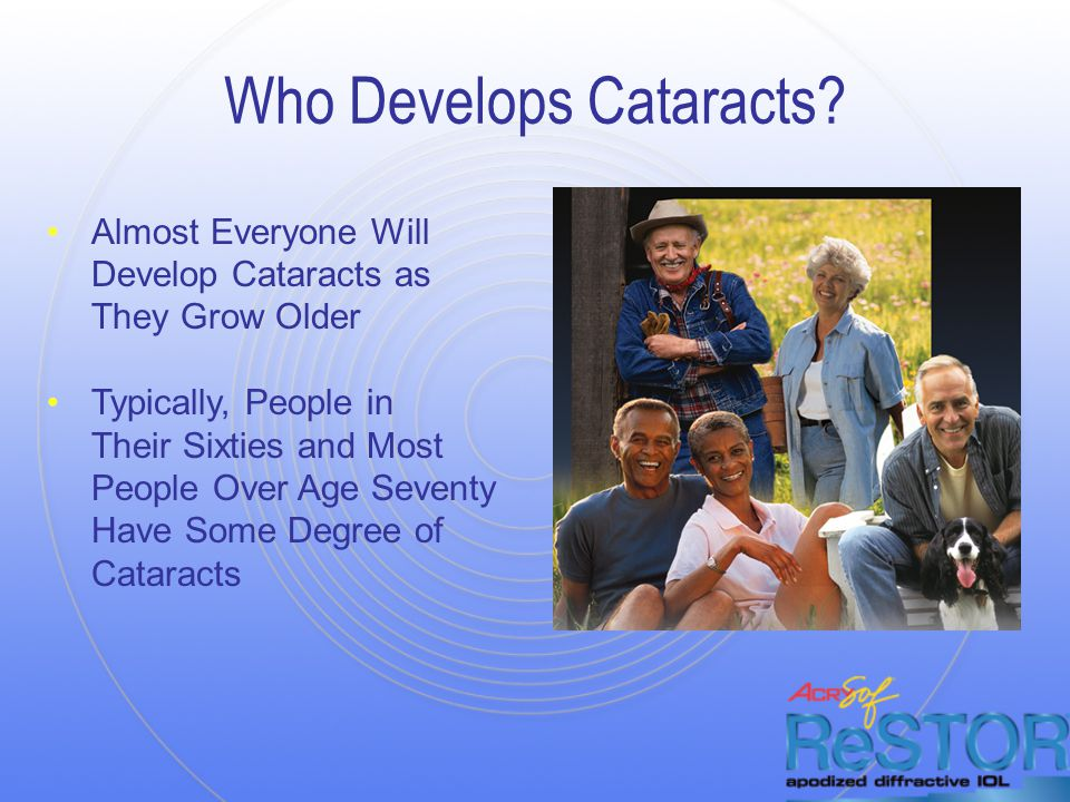 Who Develops Cataracts.
