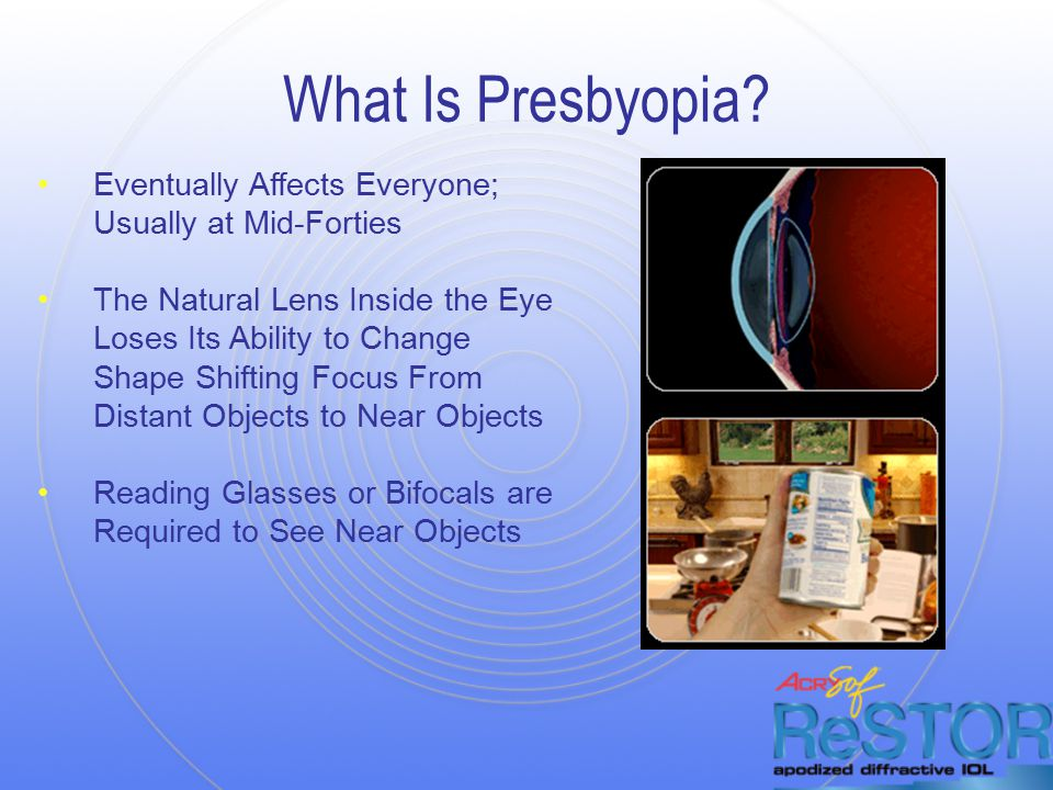 What Is Presbyopia.