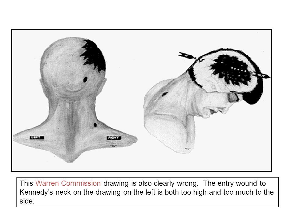 The post mortem or autopsy photo on the right shows the actual location of the bullet entry wound, as opposed to the official drawing of Warren Commission on the left, which places it too high on the neck.