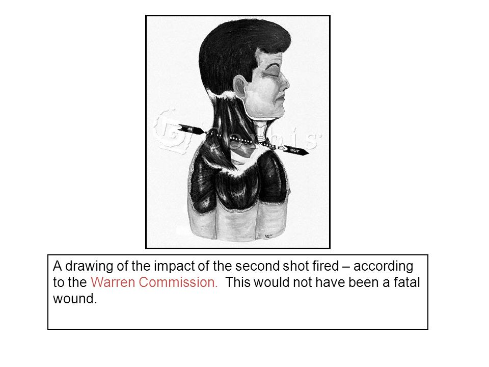 This Warren Commission drawing is also clearly wrong.