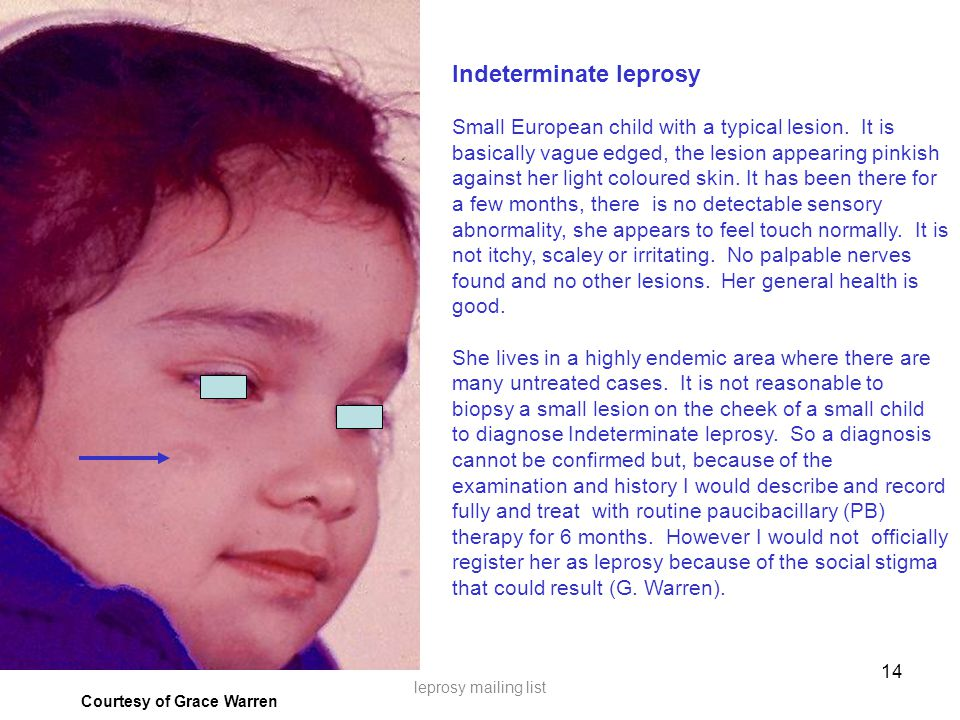 14 Courtesy of Grace Warren leprosy mailing list Indeterminate leprosy Small European child with a typical lesion.