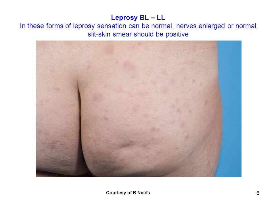 7 Leprosy BL – LL In these forms of leprosy sensation can be normal, nerves enlarged or normal, slit-skin smear should be positive Courtesy of B Naafs