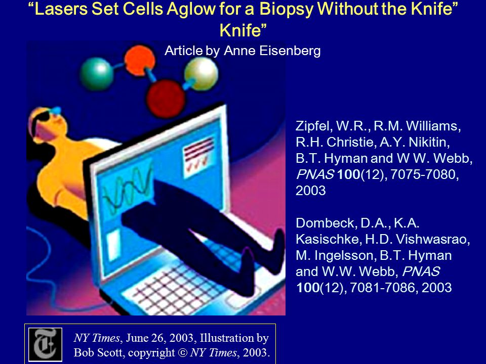 Lasers Set Cells Aglow for a Biopsy Without the Knife Article by Anne Eisenberg NY Times, June 26, 2003, Illustration by Bob Scott, copyright  NY Times, 2003.