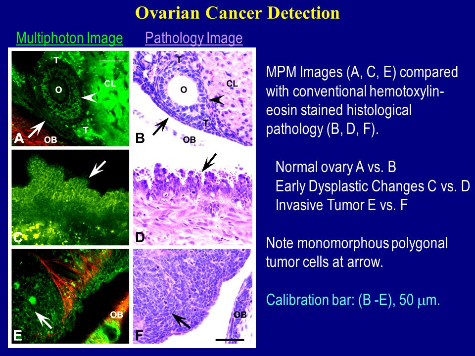 Ovarian Cancer Detection MPM Images (A, C, E) compared with conventional hemotoxylin- eosin stained histological pathology (B, D, F).