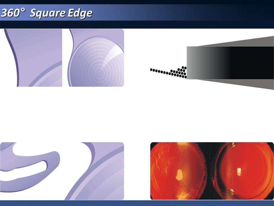360° Square Edge