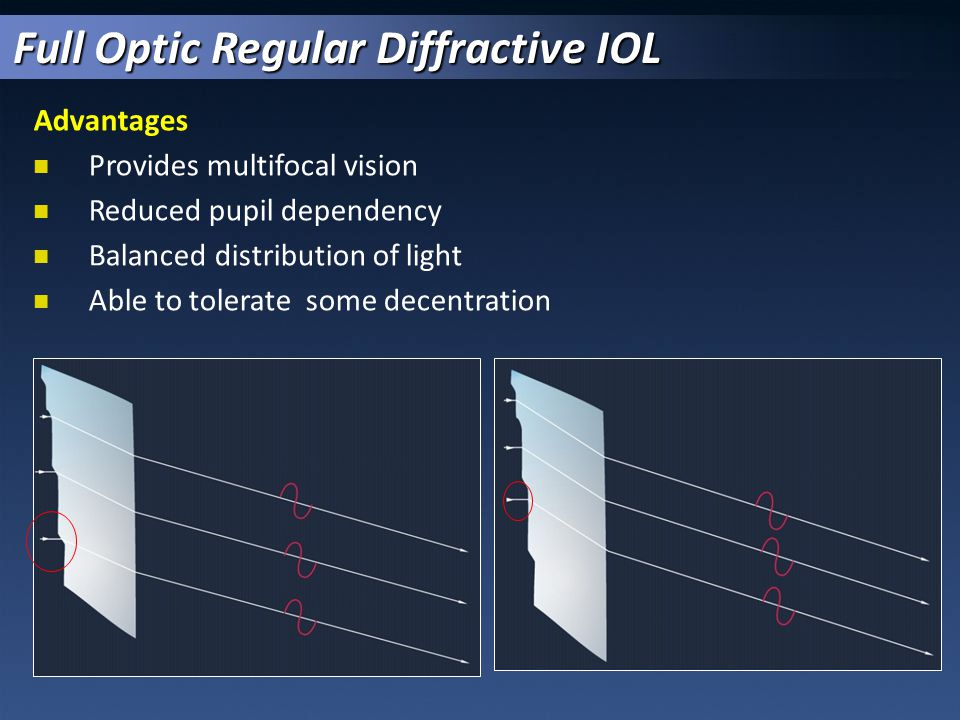 Aspheric Optic (Aberration Neutral)