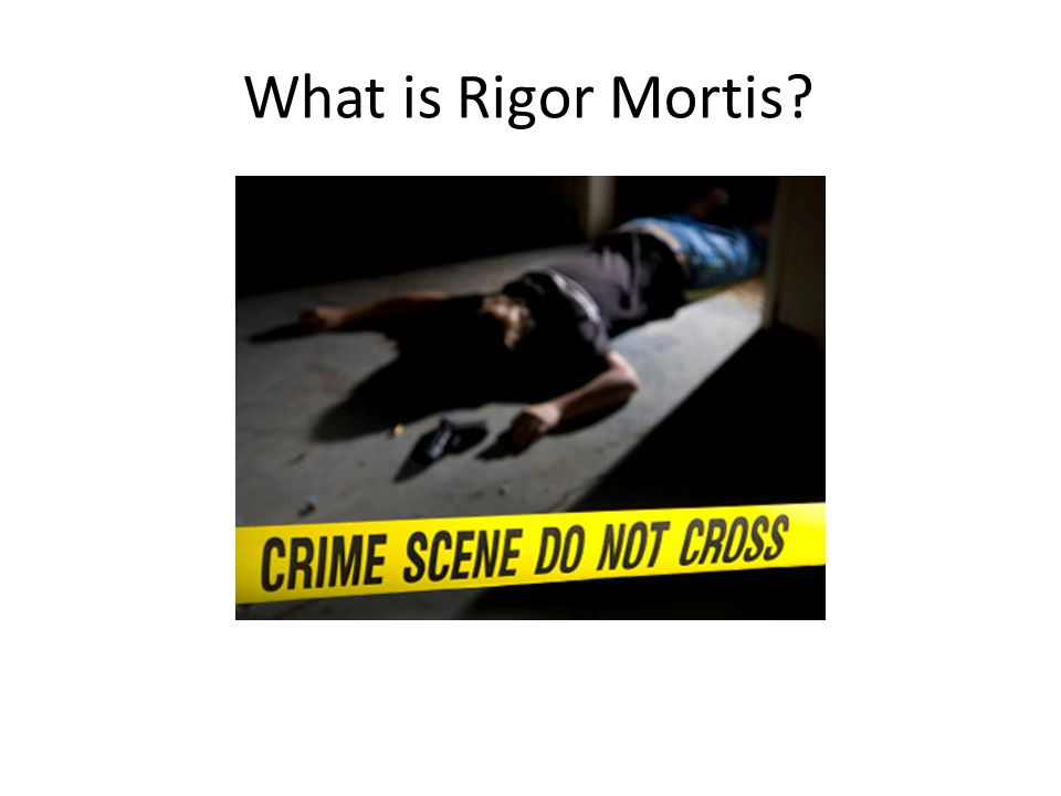 What is Rigor Mortis?