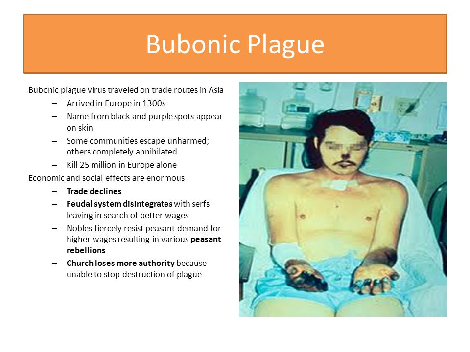 Bubonic Plague Bubonic plague virus traveled on trade routes in Asia – Arrived in Europe in 1300s – Name from black and purple spots appear on skin –
