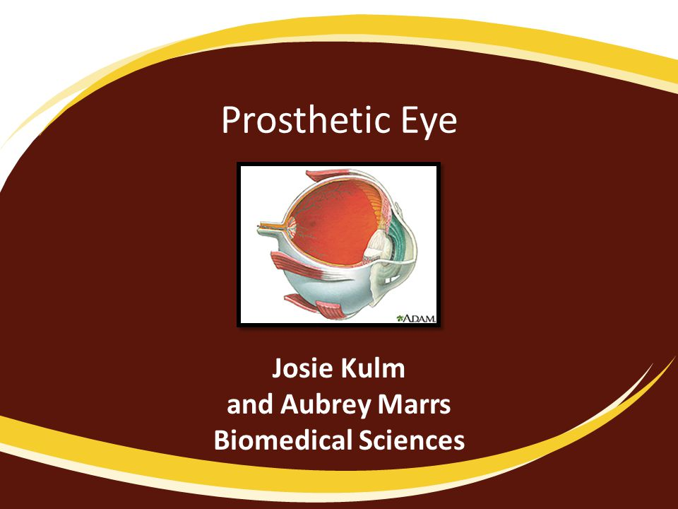 Prosthetic Eye Josie Kulm and Aubrey Marrs Biomedical Sciences