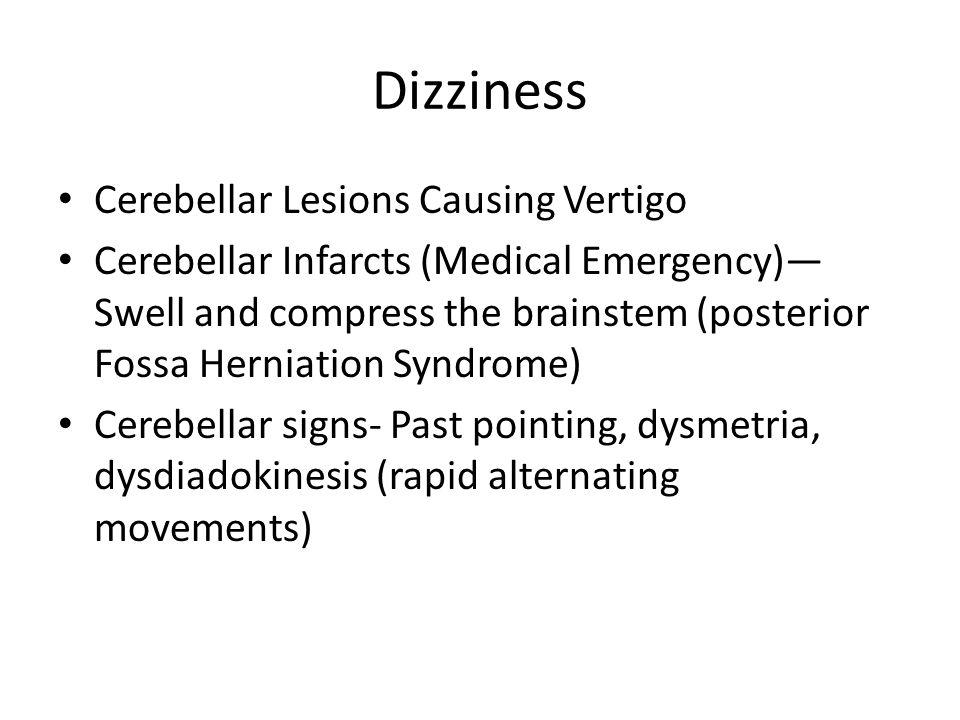 Dizziness Cerebellar Lesions Causing Vertigo Cerebellar Infarcts (Medical Emergency)— Swell and compress the brainstem (posterior Fossa Herniation Syn