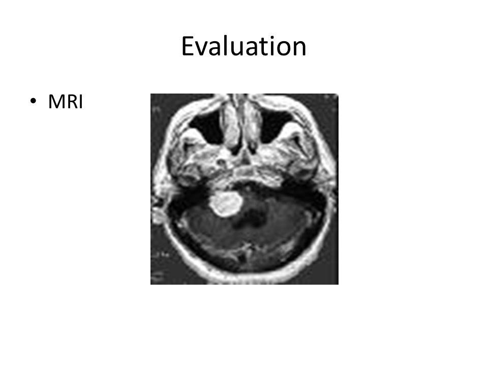 Evaluation MRI