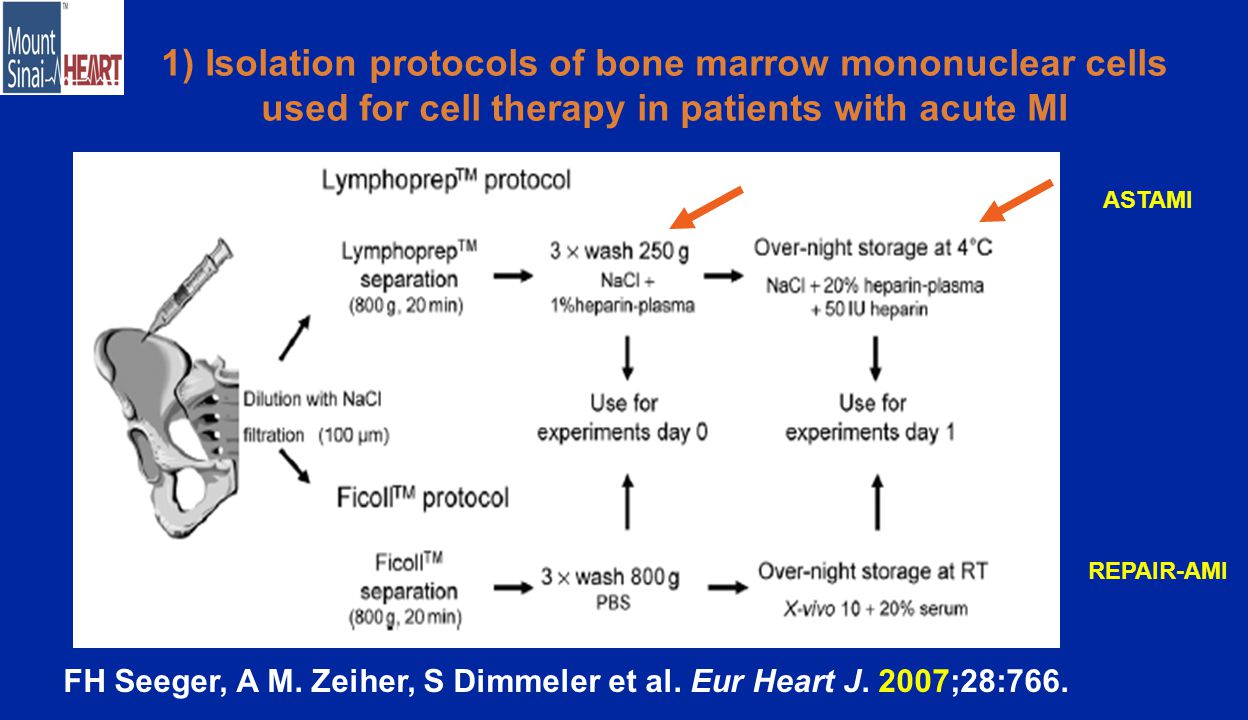 1) Isolation protocols of bone marrow mononuclear cells used for cell therapy in patients with acute MI FH Seeger, A M.