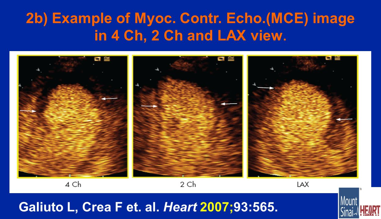 2b) Example of Myoc. Contr. Echo.(MCE) image in 4 Ch, 2 Ch and LAX view.