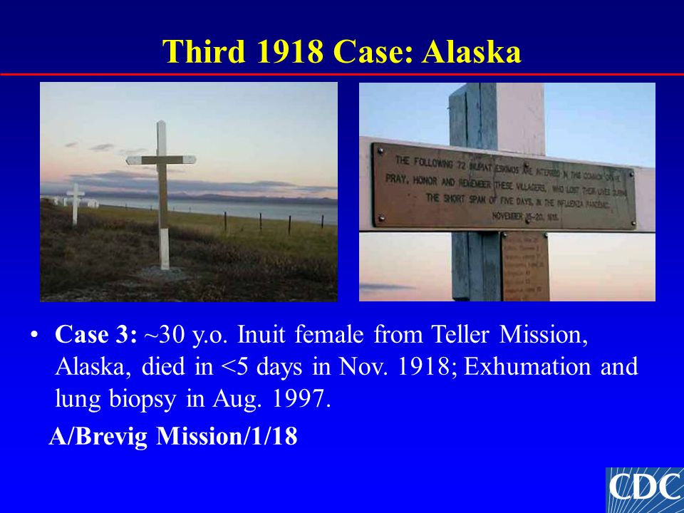 Third 1918 Case: Alaska Case 3: ~30 y.o. Inuit female from Teller Mission, Alaska, died in <5 days in Nov. 1918; Exhumation and lung biopsy in Aug. 19