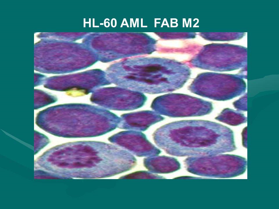 HL-60 AML FAB M2