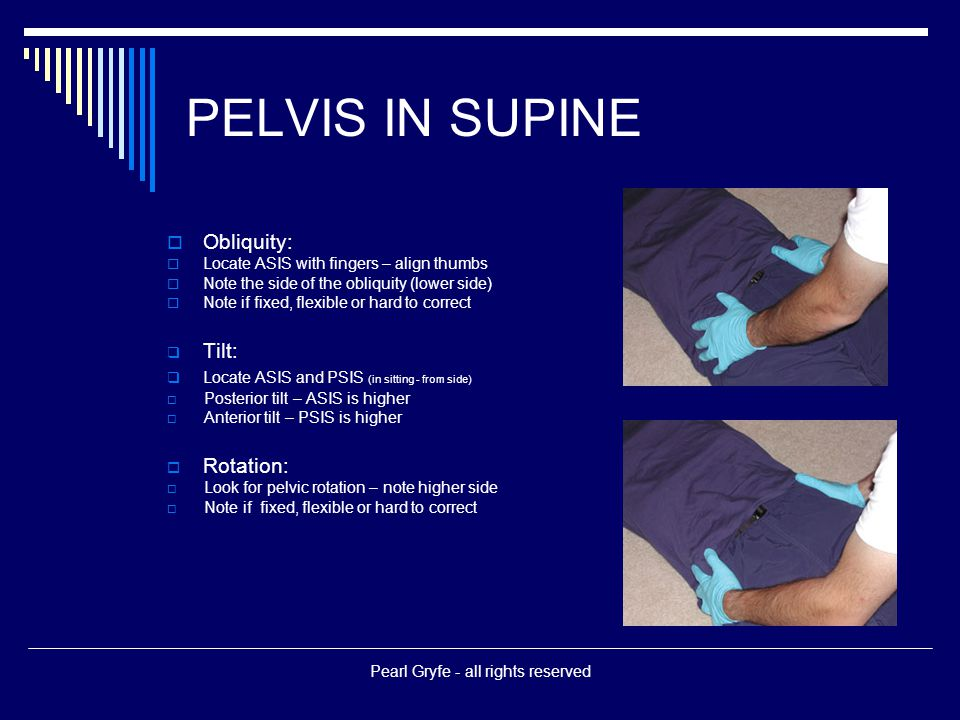 PELVIS IN SUPINE  Obliquity:  Locate ASIS with fingers – align thumbs  Note the side of the obliquity (lower side)  Note if fixed, flexible or hard to correct  Tilt:  Locate ASIS and PSIS (in sitting - from side)  Posterior tilt – ASIS is higher  Anterior tilt – PSIS is higher  Rotation:  Look for pelvic rotation – note higher side  Note if fixed, flexible or hard to correct Pearl Gryfe - all rights reserved