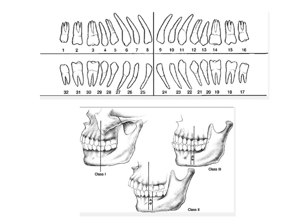 Fracture Repair- principles Purpose of fx repair- regain aesthetic form and occlusal fxn Rigid fix- elim movement across fx, allows primary bone healing, minimizes callus formation Occlusion>>fracture reduction MMF, ivy loops, IMF- to re-est occlusion Work from stable to unstable, known to unknown, periphery to center Re-est facial height 1 st -repair mandible 1 st, make sure midface not impacted/rotated before rigid fixation Then stabilize buttresses- L/J plates Then central face Then orbits- floor has irregular convexity, not a complete sphere, failure to recognize will cause enopthalmos Repair CSF leaks immediately, longer leak  incr r/o meningits
