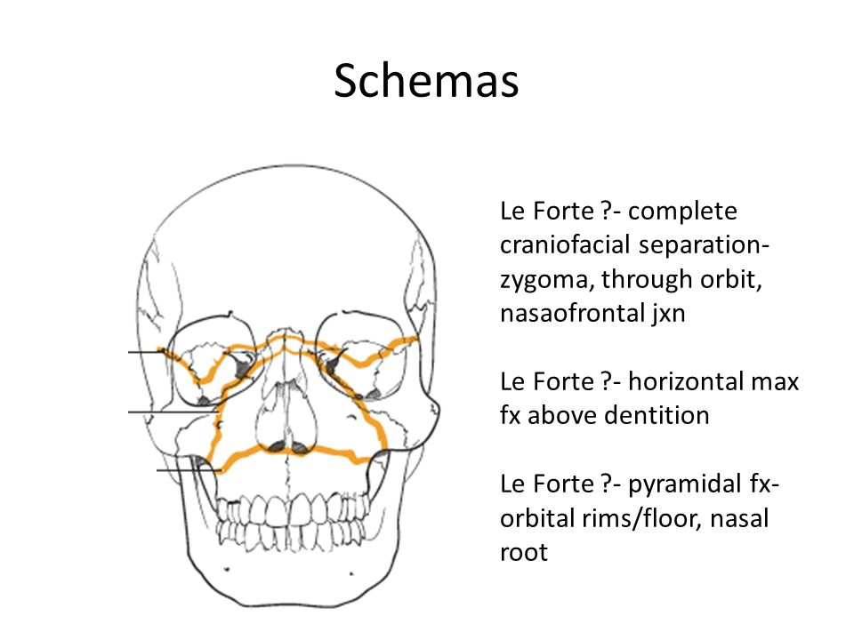 Schemas Le Forte I- horizontal max fx above dentition Le Forte lI- pyramidal fx- orbital rims/floor, nasal root Le Forte III- complete craniofacial separation- zygoma, through orbit, nasaofrontal jxn