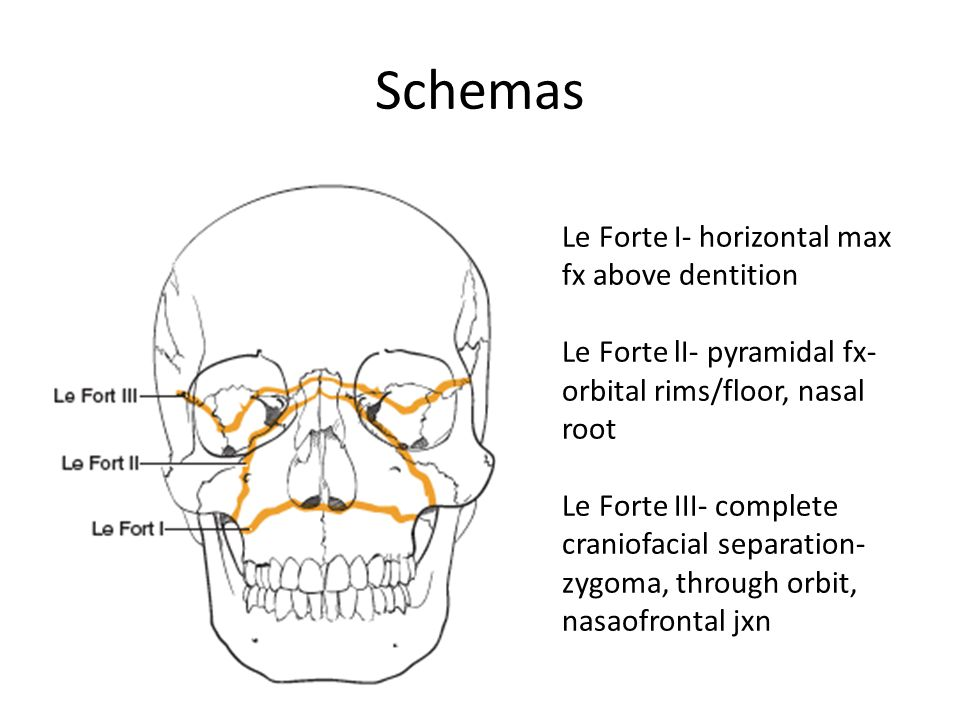 Schemas Le Forte I- horizontal max fx above dentition Le Forte lI- pyramidal fx- orbital rims/floor, nasal root Le Forte III- complete craniofacial separation- zygoma, through orbit, nasaofrontal jxn