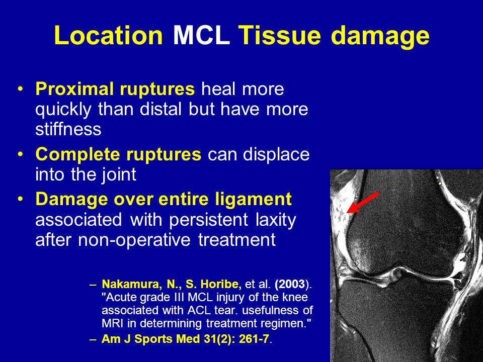 Location MCL Tissue damage Proximal ruptures heal more quickly than distal but have more stiffness Complete ruptures can displace into the joint Damage over entire ligament associated with persistent laxity after non-operative treatment –Nakamura, N., S.